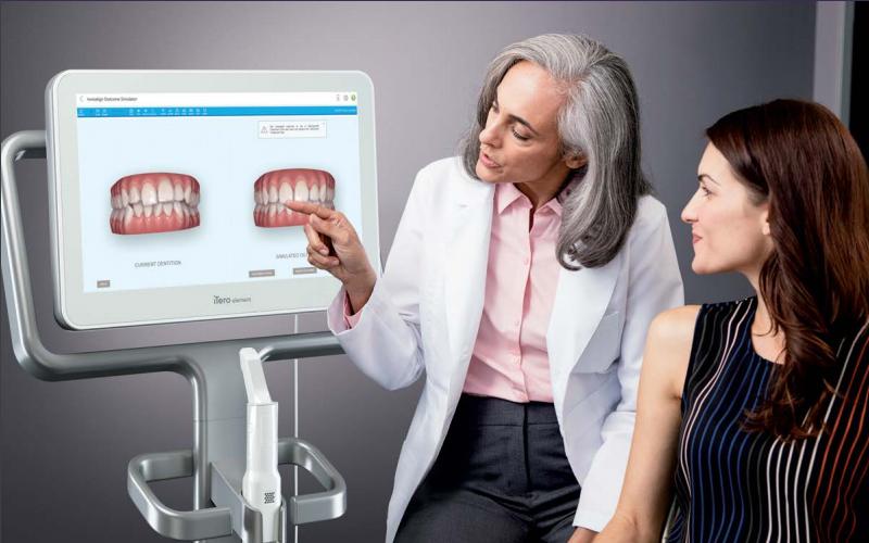 Scanner intraoral iTero