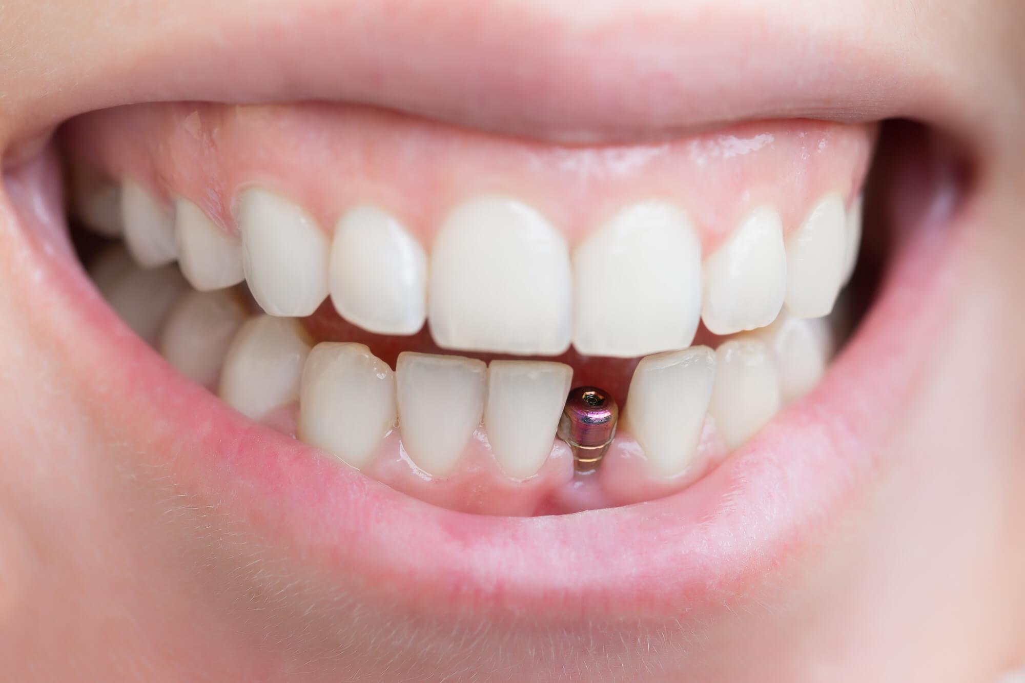 Implante Dentário: tudo que você precisa saber